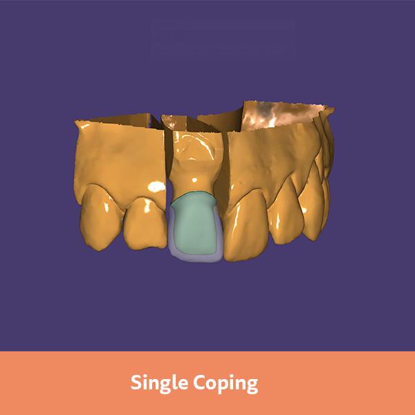 dentalshare - exocad