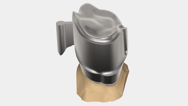 exocad - Dental CAD Software – Unique Dental Supply Inc