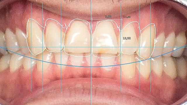 exocad dental cad full version with crack
