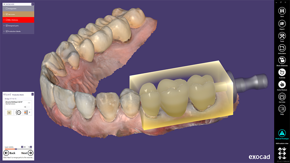 Bridge Multilayer Zirconia