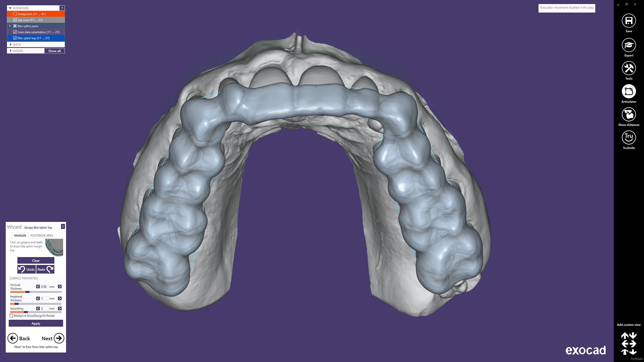 Bite Splint Module - exocad