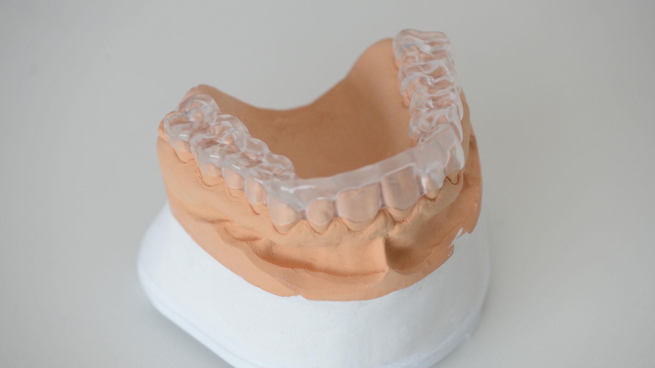 Our Blog | Rotsaert Dental Laboratory Services Inc