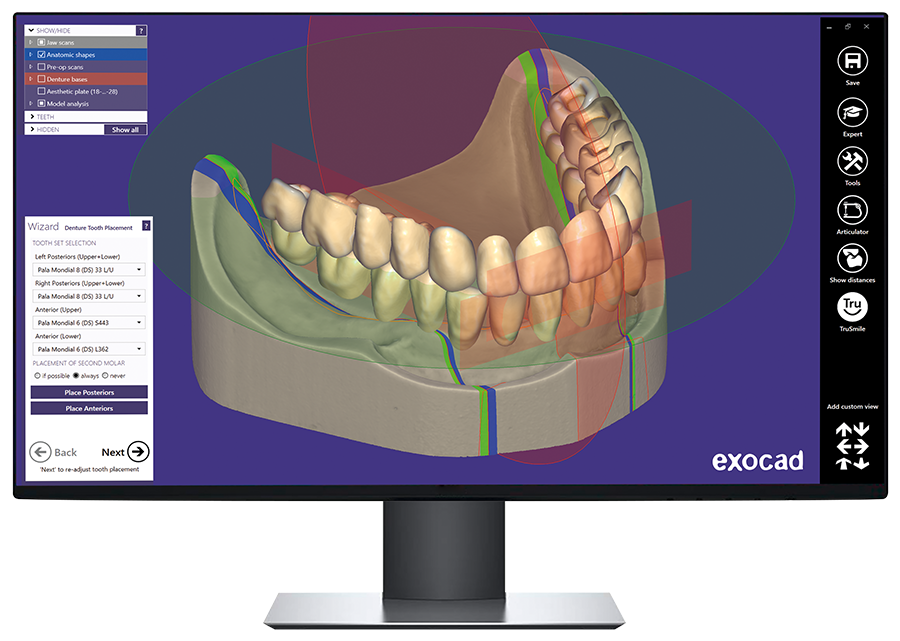 Automatically suggested tooth setup