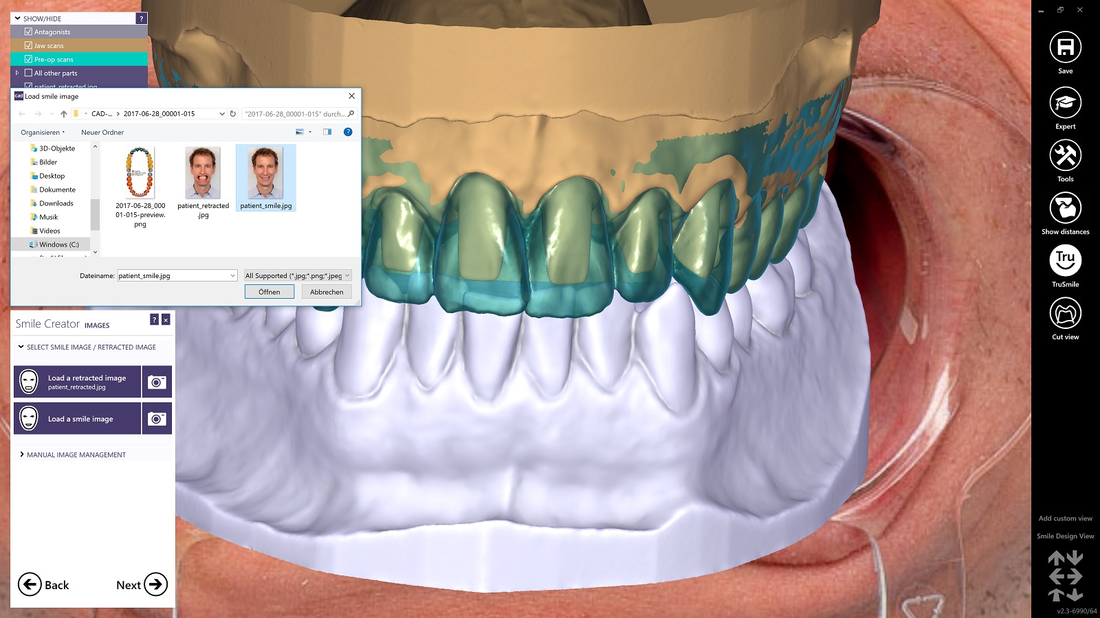 After the retracted image, the smile image can be imported