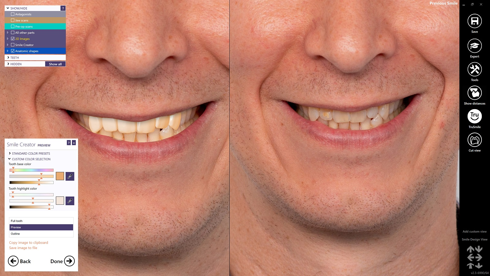 Alternatively, you can click on existing teeth in the photo, to match the color to the remaining dentition