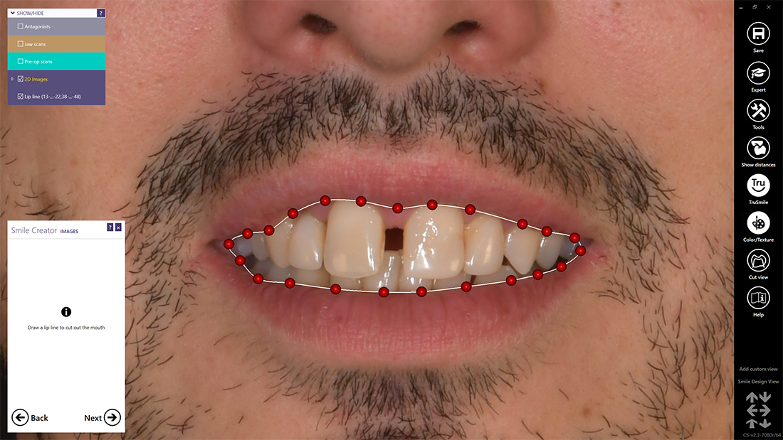 Simply by drawing a line, you define the lip line on the smile image. Any error is easily corrected by moving the red dots