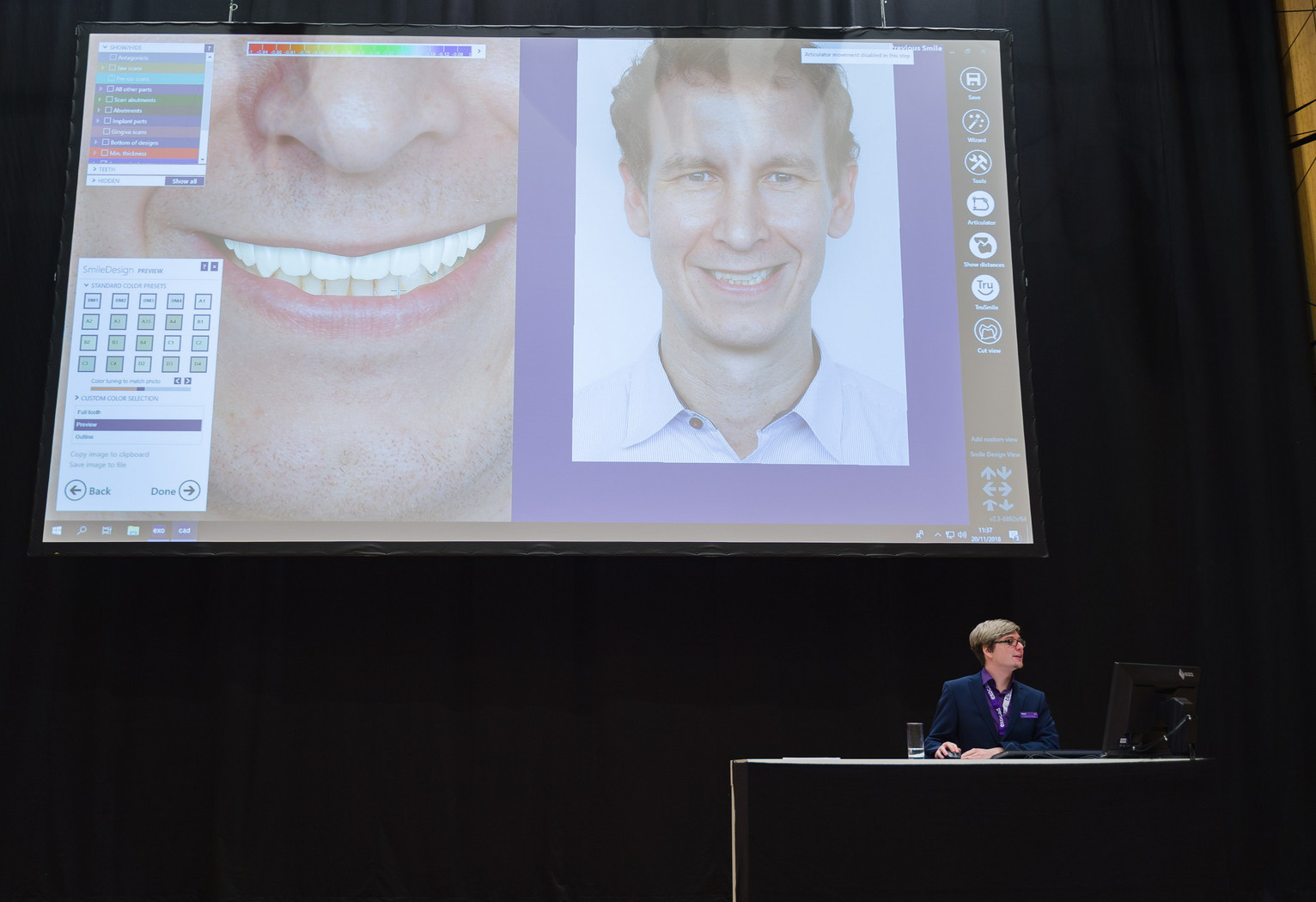 Application specialist Friedemann Stang demonstrated the brand new Smile Creator module.
