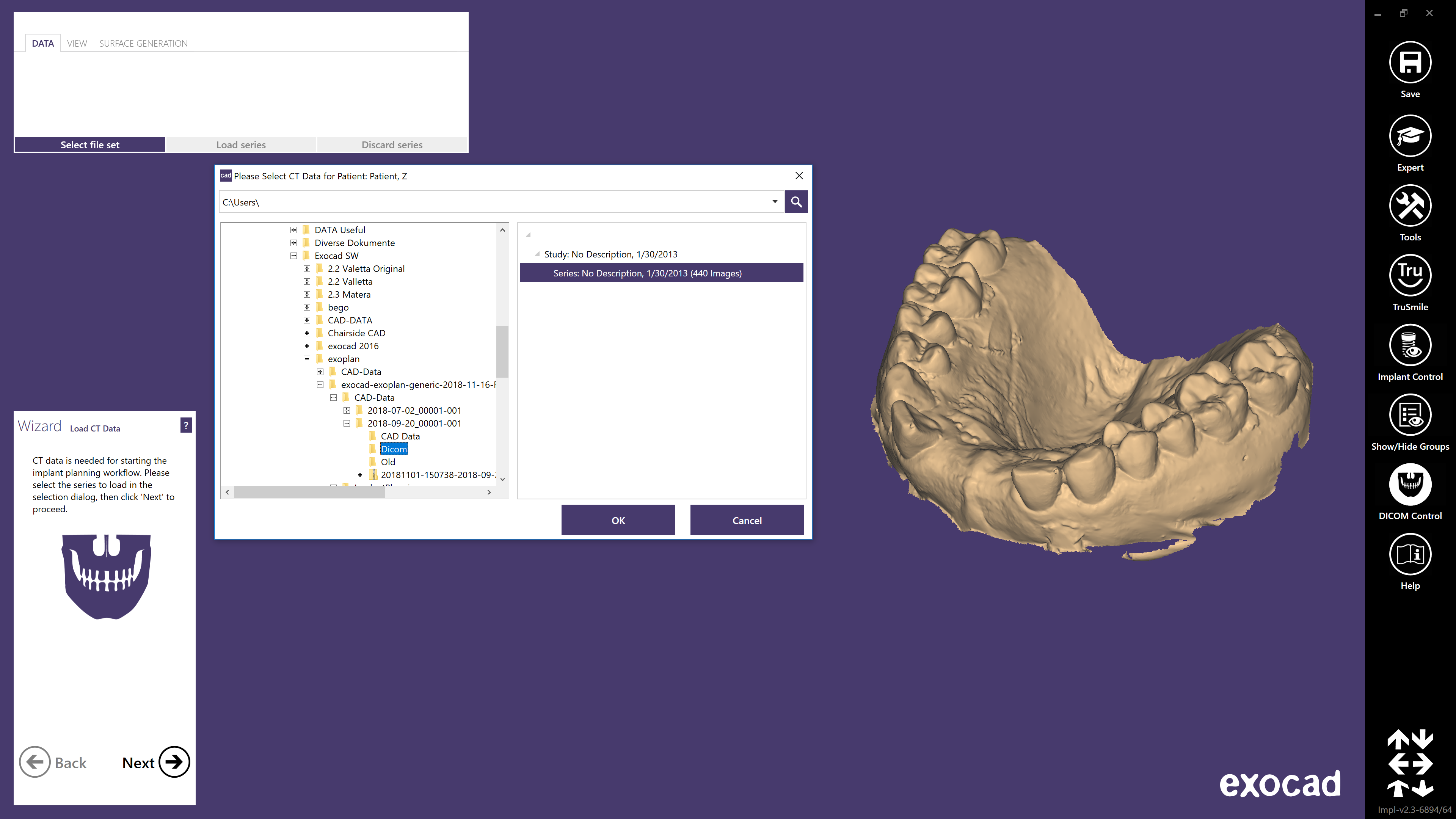 Load your CBCT files with our ultra fast DICOM viewer and start the guided workflow.