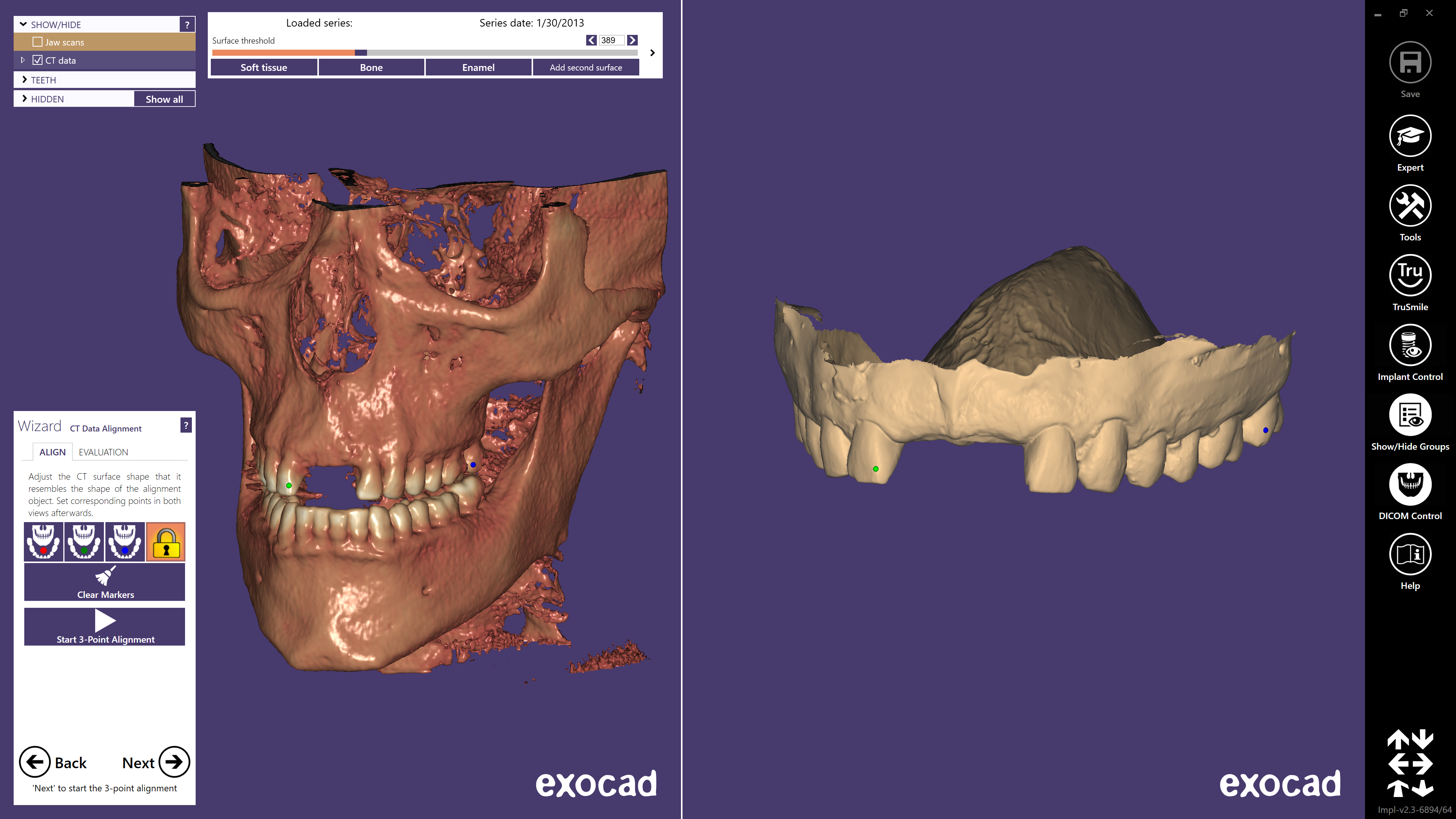 Align your CBCT and surface scan data of a model...