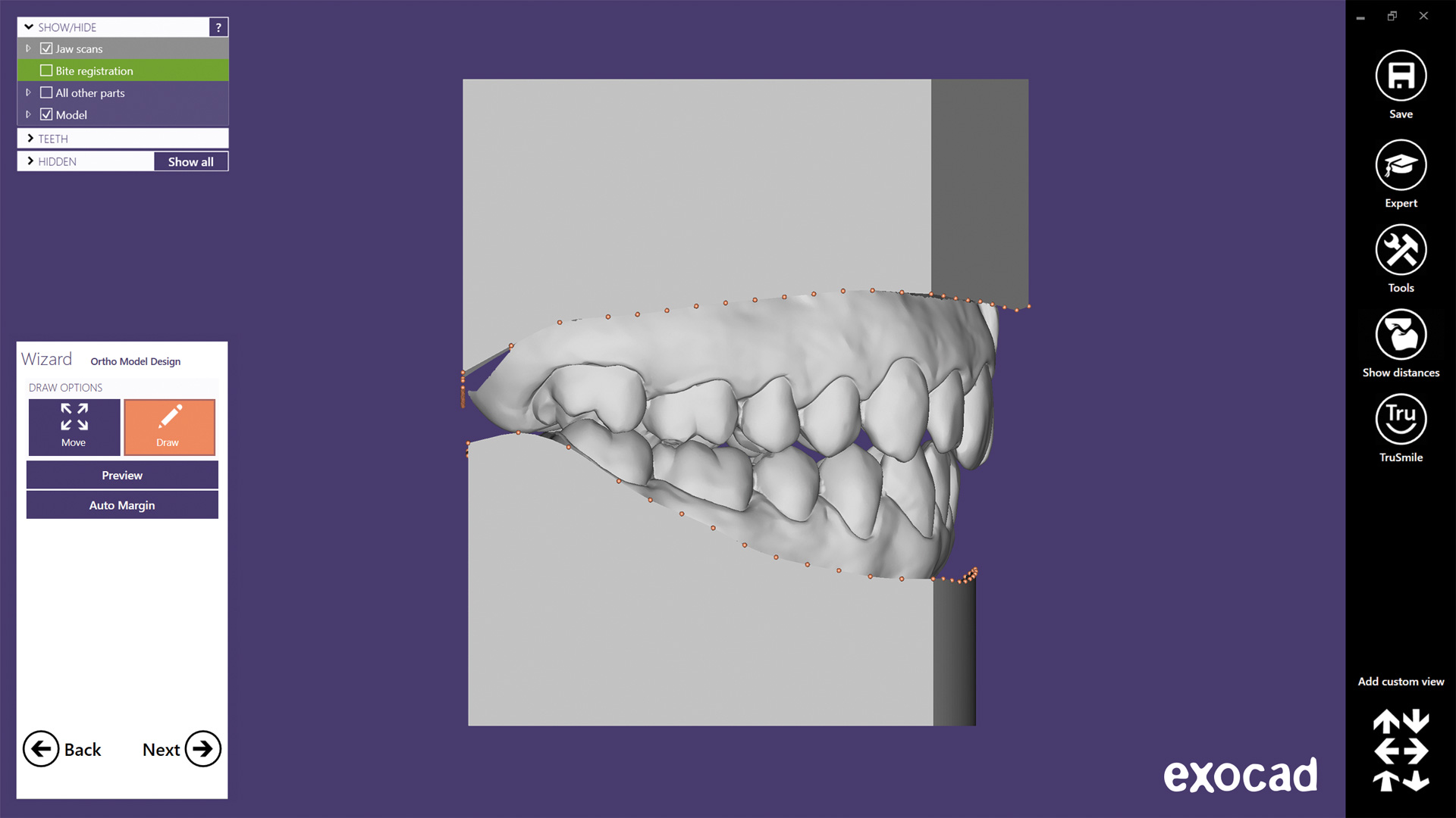 Preview: exocad Ortho Archiver is our solution to create orthodontic archive models.