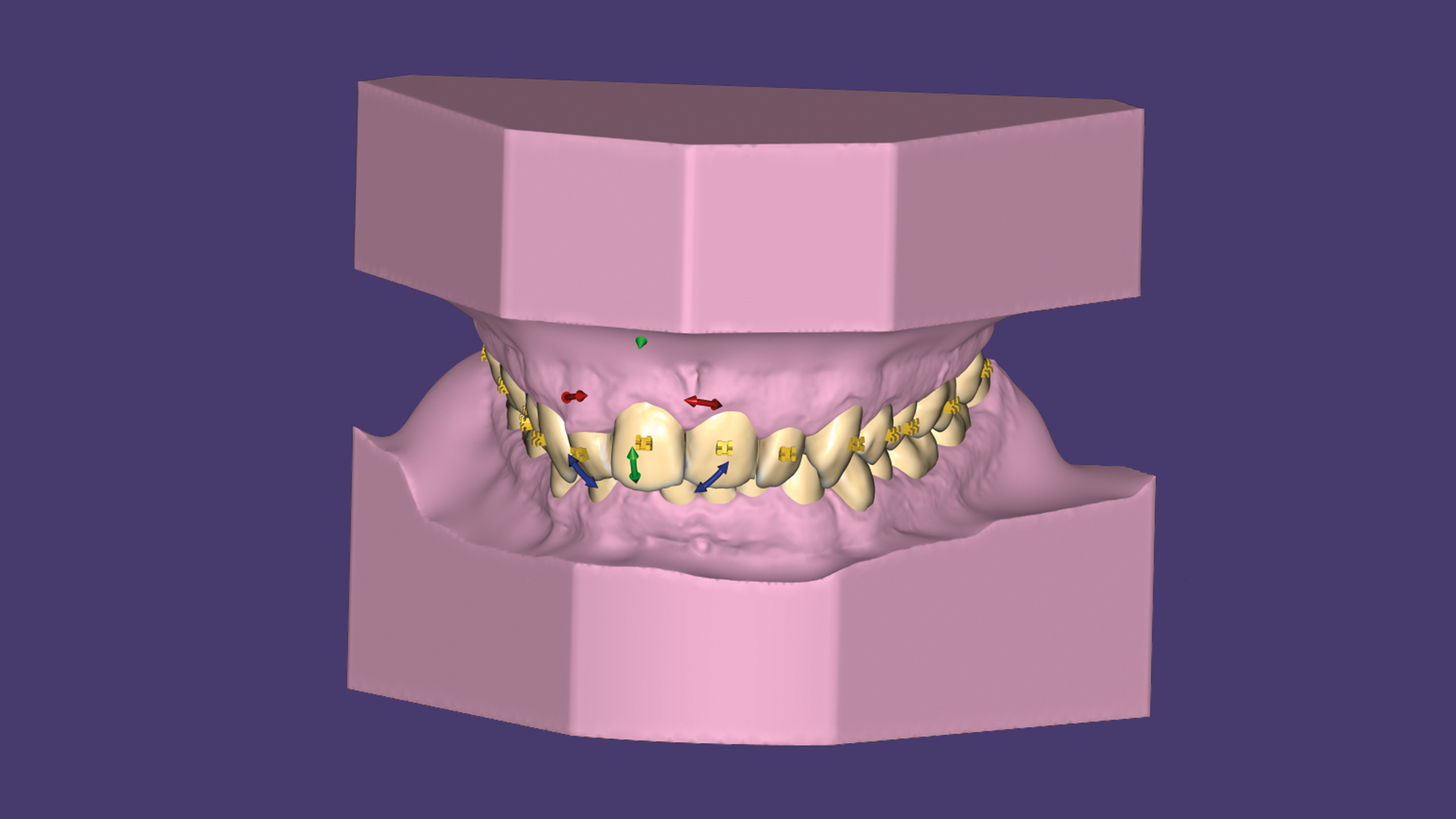 Use our ortho modules together with TruSmile Technology, for near photorealistic tooth rendering