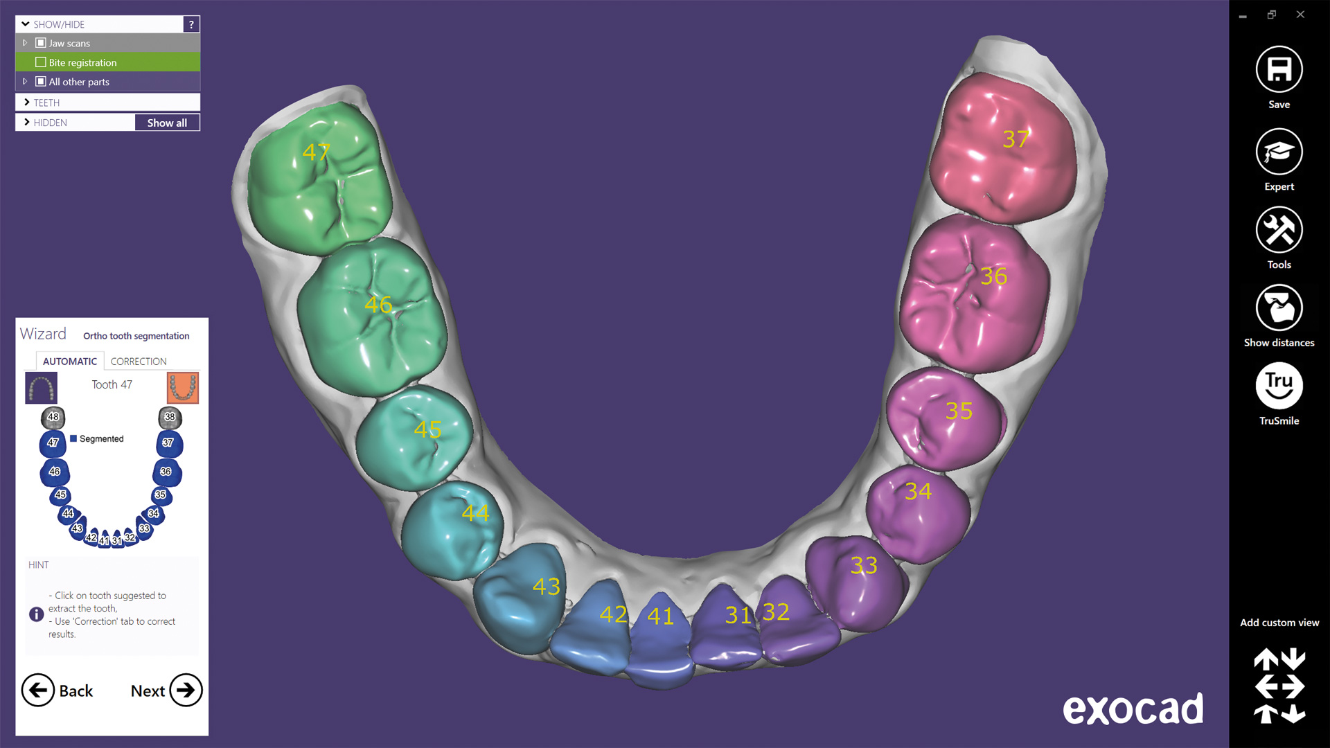One-click tooth segmentation